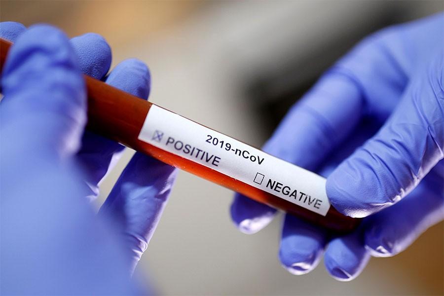 """पछिल्लो २४ घण्टा : """"नेपालमा थप २८५६ मा कोरोना संक्रमण पुष्टि"""""""